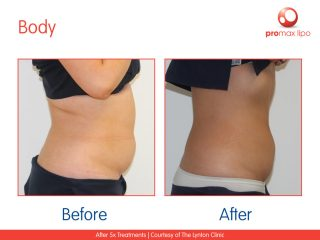 non surgical Fat removal results