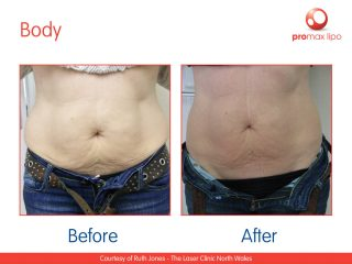 non surgical liposuction results