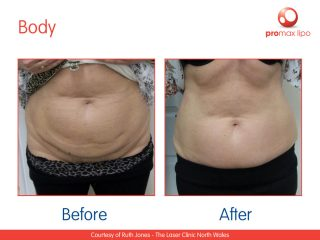 non surgical liposuction before and after