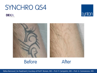 Synchro QS4 Laser Tattoo Removal Before and After Result After 3 Treatments
