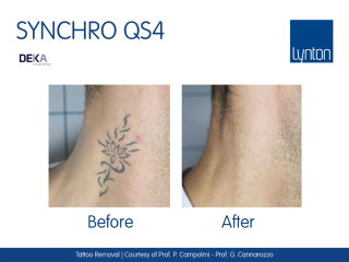Synchro QS4 Laser Tattoo Removal Before and After Result on Male Neck