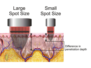 Synchro QS4 Tattoo Removal Laser Spot Sizes
