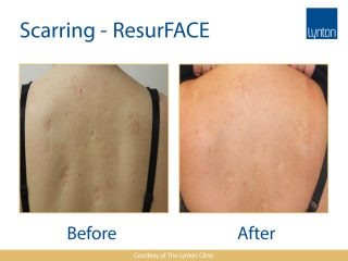 Lynton Lasers LUMINA Scar Treatment Before and After Result on Woman Back