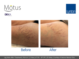 Motus AY Leg Veins Treatment Before and After Result from One Treatment