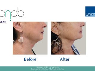 Skin Laxity Before and After ONDA = 4x Treatments