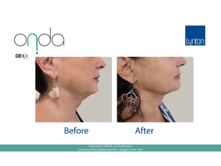 ONDA Coolwaves Skin Laxity Before and After Result After 4 Treatments on Womans Neck and Chin