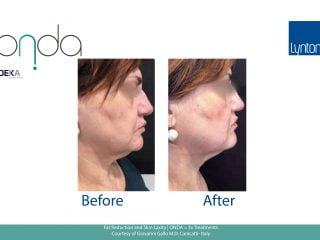 Skin Laxity Before and After with Onda
