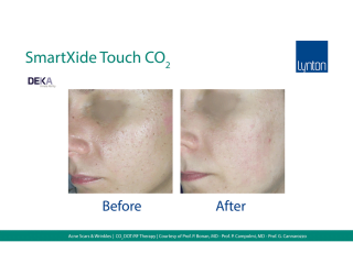 SmartXide Touch Co2 Acne Scarriing Before and After Result on Face
