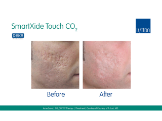 SmartXide Touch Co2 Acne Scarriing Before and After One Treatment on Face