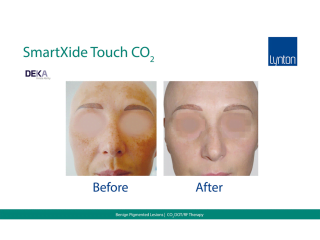 SmartXide Touch Co2 Benign Pigment Before and After Result on Womans Face