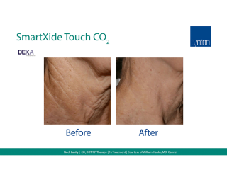 SmartXide Touch Co2 Skin Laxity on Neck Before and After Result