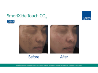 SmartXide Touch Co2 Pigmentation Before and After Result on Womans Face