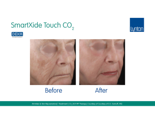 SmartXide Touch Co2 Skin Rejuvenation Before and After Result