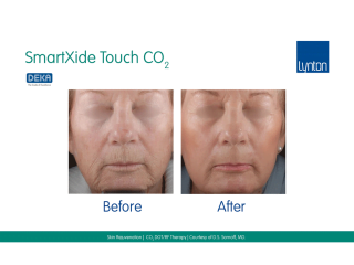 SmartXide Touch Co2 Skin Rejuvenation Before and After Result on Womans Face
