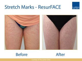 Lynton Lasers LUMINA Stretch Mark Before and After Result on Woman Legs