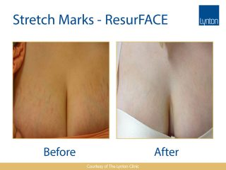 Lynton Lasers LUMINA Stretch Marks Before and After Result on Woman Chest