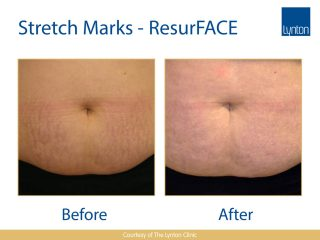 Lynton Lasers LUMINA Stretch Marks Treatment Before and After Results on Stomach