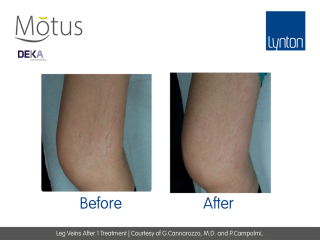 Motus AY Leg Veins Removal Treatment Before and After Results from One Treatment