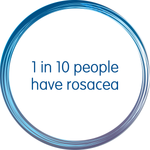 1 in 10 people have rosacea