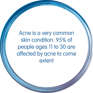Acne is a very common skin condition which affects 95% of people ages 11 to 30 are affected by acne to come extent