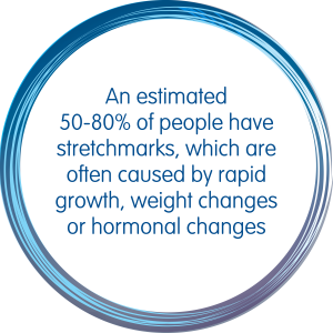An estimated 50-80 percent of people have stretchmarks, which are often caused by rapid growth, weight changes or hormonal changes