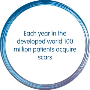 Each year in the developed world 100 million patients acquire scars