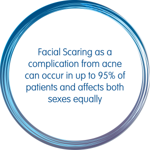 Facial Scaring as a complication from acne can occur in up to 95% of patients and affects both sexes equally