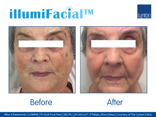 illumiFacial Before and After Results Womans Face After 4 Treatments