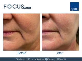 Focus Dual HIFU and RF Microneedling Treatment Before and After
