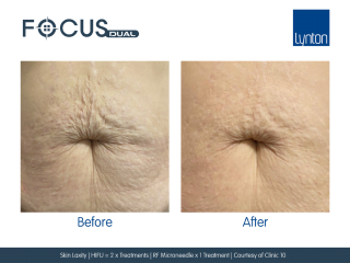 Focus Dual Before and After HIFU and RF Microneedling Treatment for Skin Laxity on Stomach