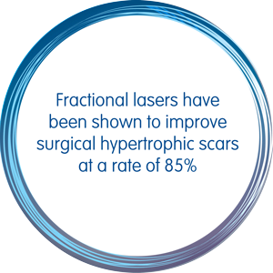 Fractional Lasers have been shown to improve surgical hypertrophic scars at a rate of 85%