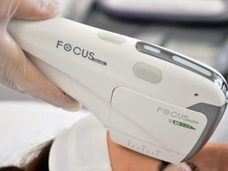 Lynton Focus Dual HIFU Handpiece on Woman Forehead