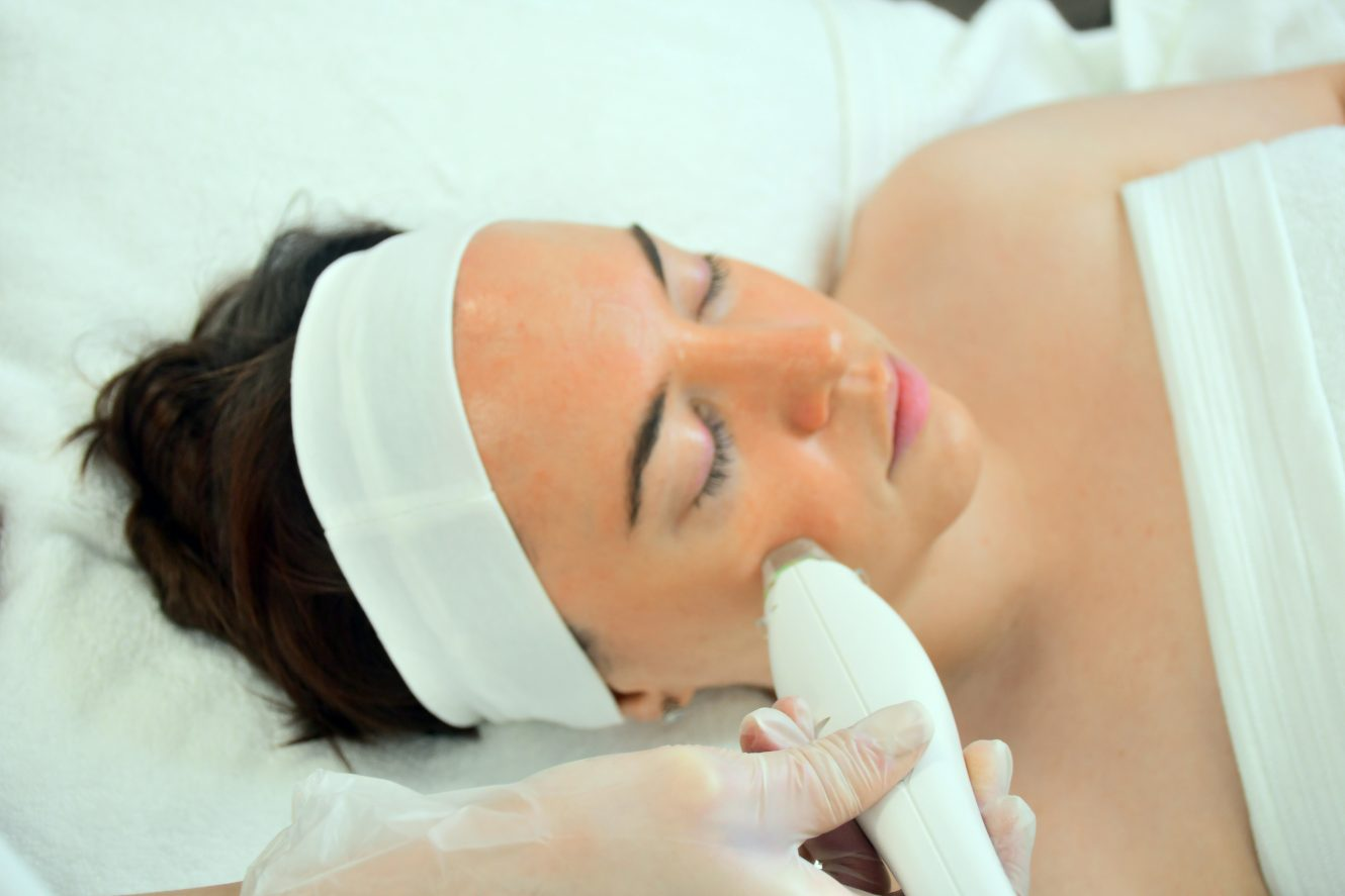 Focus Dual Microneedling Radiofrequency Treatment on Woman's Face