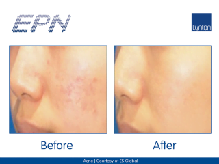 EPN Pen Before and After Result for Acne Scarring on a Woman's Face