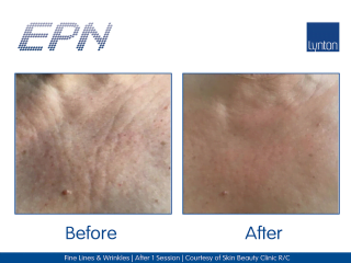EPN Pen Before and After Wrinkle Treatment on a Woman's Face