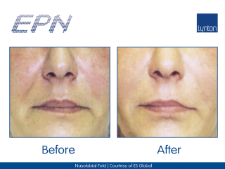 EPN Pen Before and After Treatment on a Woman's Face