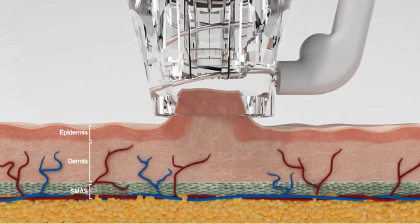 Focus Dual Vacuum Suction Technology on Skin