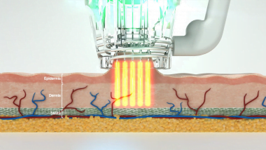 Focus Daul needle inserting RF into skin