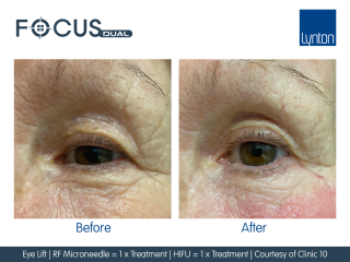 Before and after Focus Dual RF Microneedling and HIFU Treatment on Ladies Eye Area