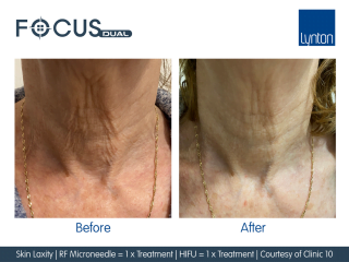 Before and After Focus Dual RF Microneedling and HIFU Treatment on Ladies Neck
