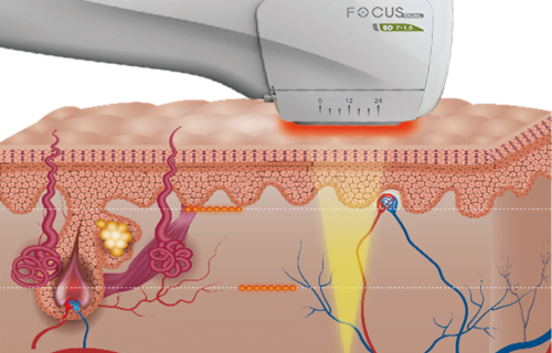 Focus Dual HIFU Treatment Handpiece in Action