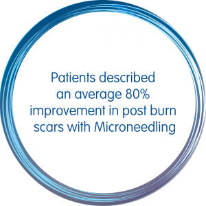Infographic: Patients described an average 80% improvement in post burn scars with Microneedling