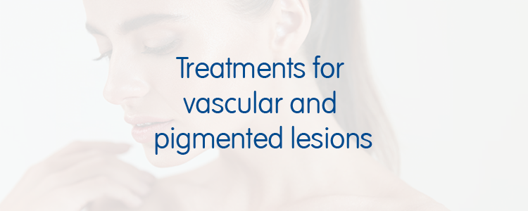 Treatment for vascular and pigmented lesions blog banner