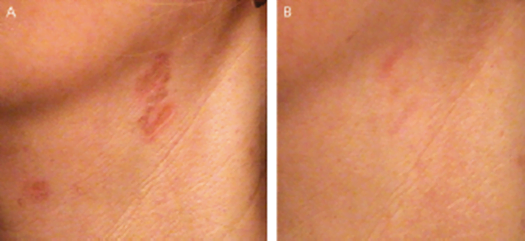 Prescars on the neck before and after PDL treatment