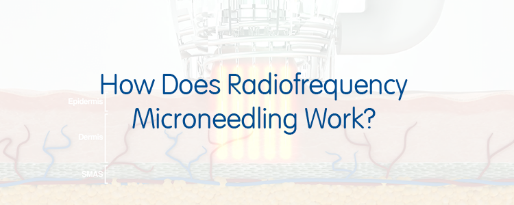 How Does Radiofrequency Microneedling Work?