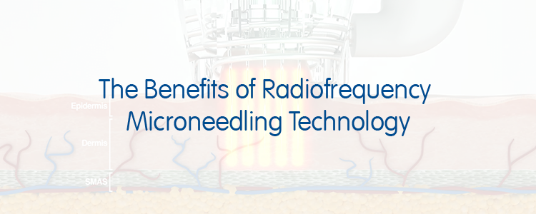 The Benefits of Radiofrequency Microneedling Technology