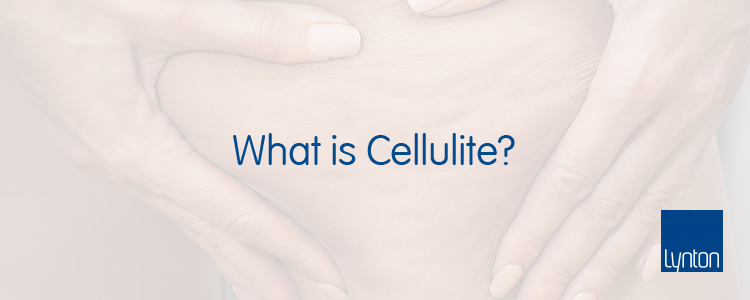 What is Cellulite Blog